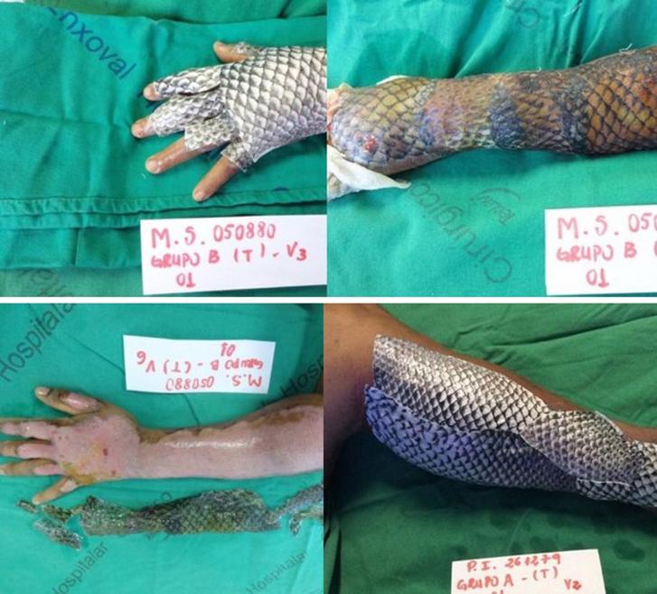 Что такое рыбья кожа у человека 157